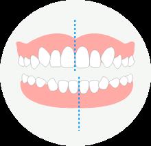 偏位の歯並び