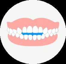 開咬の歯並び