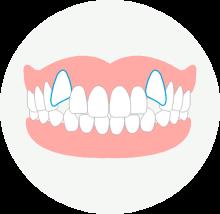 八重歯(叢生)