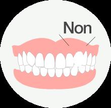 先天性欠損歯
